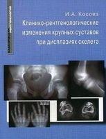 Клинико-рентгенологические изменения крупных суставов при дисплазиях скелета